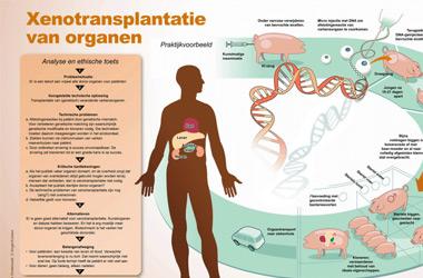 Infographic: hoe werkt xenotransplantatie en hoe kun je de ethische aanvaardbaarheid daarvan toetsen?